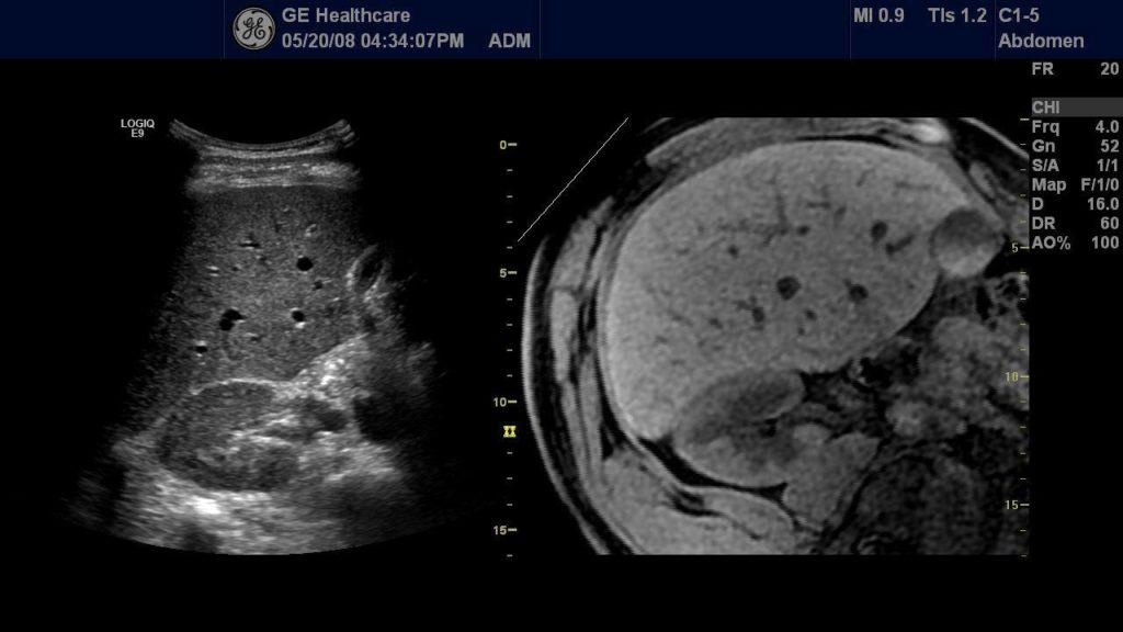 medical-scan